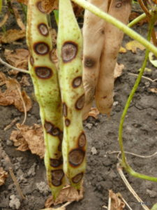 Anthracnose Pod Infection - sunken cankers with dark  border and spore mass center